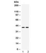 Western blot testing of 1) rat pancreas and 2) human HeLa lysate with PSAT1 antibody at 0.5ug/ml. Predicted/observed molecular weight ~40 kDa.
