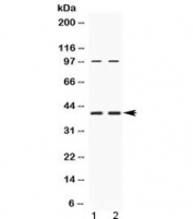 Western blot testing of human 1) HeLa and 2) U-2 OS cell lysate with RPSA antibody at 0.5ug/ml. Routinely observed molecular weight: 37-40 kDa and 67 kDa.