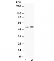 Western blot testing of 1) rat brain and 2) human HeLa lysate with AAT antibody at 0.5ug/ml. Expected molecular weight: ~47 kDa (unmodified), 52 kDa (glycosylated).