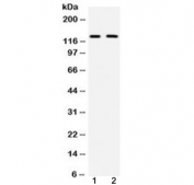 Western blot testing of mouse 1) brain and 2) HEPA lysate with mouse CD11b antibody at 0.5ug/ml. Expected molecular weight: 127~170 kDa due to glycosylation.