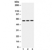 Western blot testing of 1) rat lung, 2) mouse lung and 3) HepG2 lysate with EPHX2 antibody at 0.5ug/ml. Predicted molecular weight: ~63/57 kDa (isoforms 1/2).