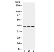 Western blot testing of 1) rat liver, 2) mouse NIH3T3 and 3) human HepG2 lysate with EBP1 antibody at 0.5ug/ml. Observed molecular weight 42 kDa (p42 isoform) and 48 kDa (p48 isoform).