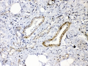 IHC testing of FFPE human lung cancer tissue with Angiopoietin 2 antibody at 1ug/ml. Required HIER: steam section in pH6 citrate buffer for 20 min and allow to cool prior to testing.
