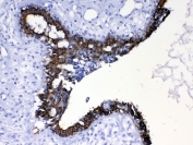 Western blot testing of 1) rat liver, 2) mouse ovay, 3) mouse liver, 4) human MCF7, 5) (h) A549 and 6) (h) HeLa lysate with Cytokeratin 8 antibody at 0.5ug/ml. Predicted molecular weight ~54 kDa.