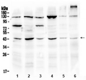 Western blot testing of 1) rat brain, 2) rat testis, 3) mouse brain, 4) mouse testis, 5) human U-2 OS and 6) human HepG2 lysate with SPARC antibody at 0.5ug/ml. Predicted molecular weight ~35 kDa, routinely observed at ~43 and 50 kDa.