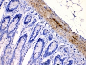 IHC testing of FFPE rat intestine tissue with CHRNA5 antibody at 1ug/ml. Required HIER: steam section in pH6 citrate buffer for 20 min and allow to cool prior to testing.