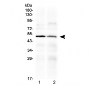 Western blot testing of human 1) PANC1 and 2) HepG2 cell lysate with HtrA3 antibody at 0.5ug/ml. Predicted molecular weight ~49 kDa.