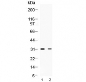 Western blot testing of 1) rat brain and 2) human HeLa lysate with TSG6 antibody at 0.5ug/ml. Predicted molecular weight ~31 kDa.