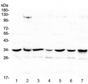 Western blot testing of 1) rat spleen, 2) rat heart, 3) rat brain, 4) mouse spleen, 5) mouse heart, 6) mouse brain and 7) human HeLa lysate with UCP2 antibody at 0.5ug/ml. Predicted molecular weight ~34 kDa.