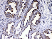 IHC testing of FFPE human lung cancer tissue with AMD1 antibody at 1ug/ml. Required HIER: steam section in pH6 citrate buffer for 20 min and allow to cool prior to testing.