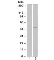 HEK293 overexpressing ILPIP/STRADB (lane 2) tested with STRADB antibody (lane 1-mock transfection). Predicted molecular weight: ~47/31kDa (isoforms alpha/beta).