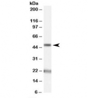 Western blot testing of human brain (substantia nigra) lysate with Acylglycerol kinase antibody at 1ug/ml. The expected ~50kDa band and the additional ~22kDa band are both blocked by the immunizing peptide.