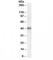 Western blot testing of human brain lysate with VDR antibody  at 0.3ug/ml. Predicted molecular weight 48/54 kDa (isoforms 1/2).