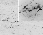 IHC testing of PFA-perfused cryosection of human hypothalamus and AGRP antibody at 0.05ug/ml.  HIER: pH6 citrate buffer at 80C for 30min, HRP-staining with Ni-DAB after biotin-SP-anti-goat amplification.