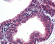 IHC testing of FFPE human prostate tissue with AKT3 antibody at 5ug/ml. Required HIER: steamed antigen retrieval with pH6 citrate buffer; AP-staining.