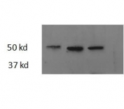 Western blot testing of three different zebrafish adult heart lysate samples with Thrb antibody at 2.5ug/ml. Predicted molecular weight: ~44kDa.