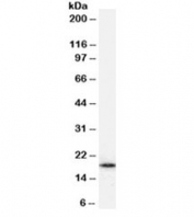 Western blot testing of HepG2 cell lysate with ARF1 antibody at 1ug/ml. Predicted molecular weight ~21kDa.