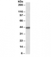 Western blot testing of human breast cancer lysate with Keratin 19 antibody at 0.1ug/ml. Predicted/observed molecular weight ~43/40-43kDa.