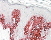 IHC staining of FFPE human skin with Sirtuin 1 antibody at 4ug/ml. HIER: steamed with pH6 citrate buffer, AP-staining.