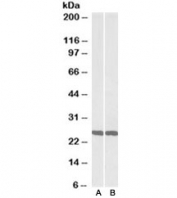 Western blot testing of mouse [A] and rat [B] brain lysate with UCHL1 antibody at 0.01ug/ml. Predicted molecular weight ~25kDa.