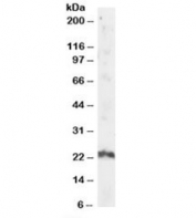Western blot testing of human testis lysate with ARL4A antibody at 2ug/ml. Predicted/observed molecular weight: ~23kDa.