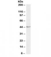 Western blot testing of Jurkat lysate with TDP-43 antibody at 0.3ug/ml. Predicted molecular weight ~43kDa.