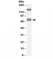 Western blot testing of human liver lysate with ACOX2 antibody at 0.1ug/ml. Molecular weight: the expected ~75kDa band and the additional ~150kDa band are both blocked by the immunizing peptide.