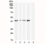 Western blot testing of Asponrin antibody with lysate from 1) human tonsil (Ab at 1ug/ml), 2) human uterus (Ab at 0.3ug/ml), 3) mouse skeletal muscle (Ab at 0.3ug/ml), 4) rat skeletal muscle (Ab at 1ug/ml) and 5) human cerebellum (negative control, Ab at 1ug/ml). Predicted molecular weight ~40 kDa.