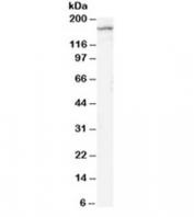 Western blot testing of rat brain lysate with NR2B antibody at 2ug/ml. Predicted molecular weight ~166kDa.