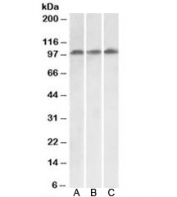 Western blot testing of HeLa [A], HepG2 [B] and Jurkat [C] lysates with VPS16 antibody at 0.1ug/ml. Predicted molecular weight: ~95kDa (isoform 1).
