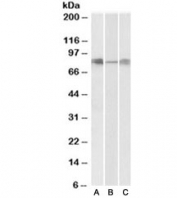 Western blot testing of human [A], mouse [B] and rat [C] lung lysates with DLL4 antibody at 0.3ug/ml. Predicted/observed molecular weight 75~85kDa.