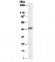 Western blot testing of human liver lysate with AADAT antibody at 1ug/ml. Predicted molecular weight: ~47kDa.