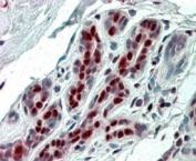 IHC staining of FFPE human breast with APRIL antibody at 4ug/ml. HIER: steamed with pH6 citrate buffer, AP-staining.