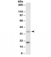 Western blot testing of mouse spleen lysate with HOXA9 antibody at 2ug/ml. Predicted molecular weight ~30kDa, both bands are blocked by the immunizing peptide.