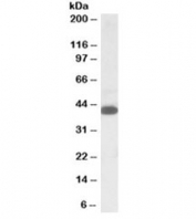 Western blot testing of K562 lysate with A4GNT antibody at 1ug/ml. Predicted molecular weight: ~40kDa.