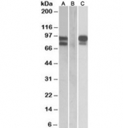 Western blot of HEK293 lysate overexpressing human PCSK9 with MYC tag probed with PCSK9 antibody (0.5ug/ml) in Lane A and probed with anti-MYC tag (1/1000) in lane C. Mock-transfected HEK293 probed with PCSK9 antibody (1ug/ml) in Lane B.