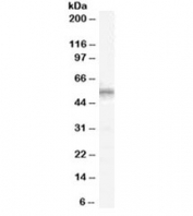 Western blot testing of human spleen lysate with WT1 antibody at 1ug/ml. Predicted molecular weight ~54 kDa.