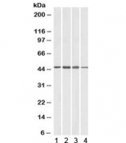 Western blot testing of brain lysate from 1) human, 2) mouse, 3) rat and 4) pig with ADAP1 antibody at 1ug/ml. Predicted molecular weight: ~43kDa.