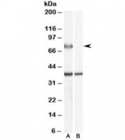 Western blot testing of human liver lysate with ACOX2 antibody at 0.5ug/ml with [B] and without [A] blocking/immunizing peptide. Predicted molecular weight: ~75kDa.