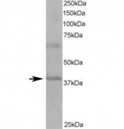 Western blot testing of human heart lysate with ABTB1 antibody at 1ug/ml. Predicted molecular weight ~38/54 kDa (isoforms 1/2).