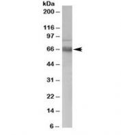 Western blot testing of human PBMC lysate with ATR antibody at 0.3ug/ml. Predicted molecular weight ~65kDa.