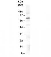 Western blot testing of Daudi cell lysate with GRK2 antibody at 0.3ug/ml. Predicted molecular weight ~80kDa.