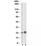 Western blot testing of Jurkat [A] and Molt4 [B] lysates with CD3e antibody at 0.1ug/ml. Expected/observed molecular weight ~23kDa.