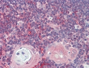 IHC testing of FFPE human thymus tissue with ARF4 antibody at 5ug/ml. Required HIER: steamed antigen retrieval with pH6 citrate buffer; AP-staining.