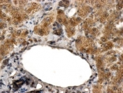 IHC testing of FFPE human liver with ALDH3A2 antibody at 2ug/ml. HIER: steamed with pH6 citrate buffer, HRP-staining.