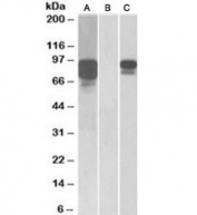 Western blot of HEK293 lysate overexpressing human PCSK9 with MYC tag probed with PCSK9 antibody [1ug/ml] in Lane A and probed with anti-MYC tag [1/1000] in lane C. Mock-transfected HEK293 probed with PCSK9 antibody [1ug/ml] in Lane B.