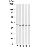 Western blot testing of thymus [A], lymph node [B], tonsil [C], spleen [D] and testis [E] lysates with Aurora B antibody at 1ug/ml. Predicted molecular weight: 39-45 kDa