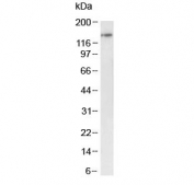 Western blot testing of mouse testis tissue lysate with BRD4 antibody at 1ug/ml. Predicted molecular weight ~156 kDa (long form) and ~81 kDa (short form).