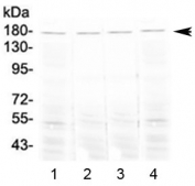 Western blot testing of 1) mouse lung, 2) mouse testis, 3) mouse stomach and 4) rat lung tissue lysate with Ace antibody at 0.5ug/ml. Expected molecular weight 140-170 kDa.