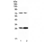 Western blot testing of rat 1) RH35 and 2) PC-12 cell lysate with Factor D antibody at 0.5ug/ml. Predicted molecular weight ~27 kDa.